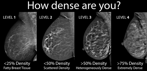 A diagnostic image of the breast showing the level of breast density.photo