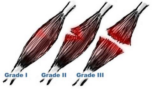A view of the different grading system for muscle strain.image