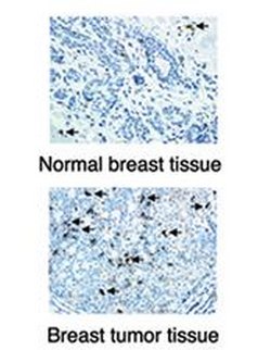 An image of a normal breast tissue and breast tumor tissue.photo