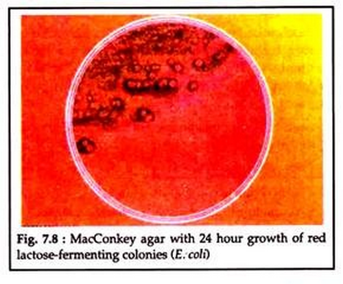 MacConkey agar with 24-hour growth of lactose fermenting colonies.image