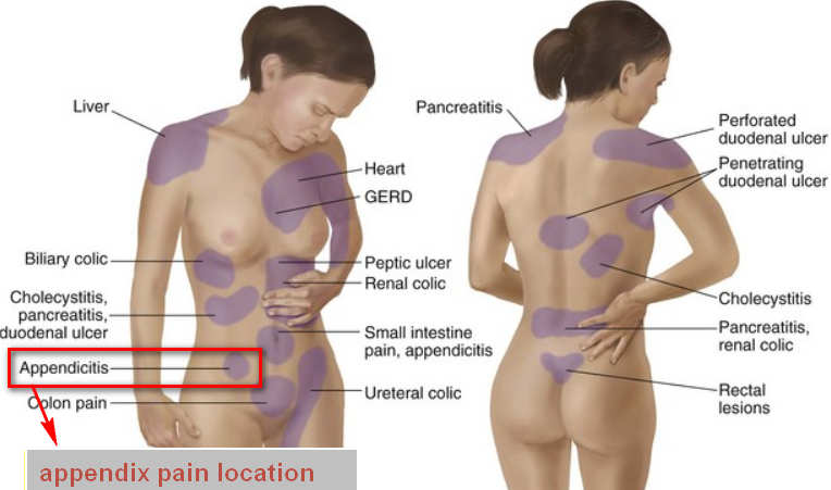 Appendix - Location, Pain, Function and Pictures