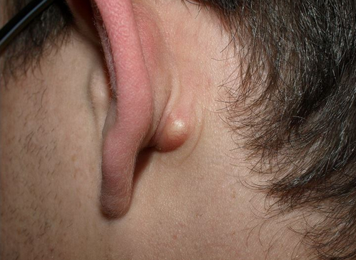 A cyst, which is more like a pimple-like structure behind the ear.photo