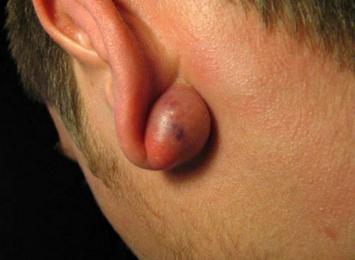 A severely infected cyst behind the ear.image