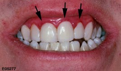 A closer look on the oral cavity of a patient with a mild swelling of the gums.photo