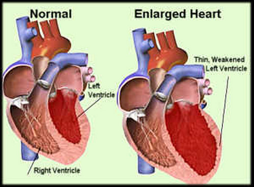 A comparison image between a normal healthy heart and an enlarged heart.photo