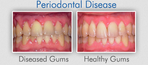 A comparison image of a healthy gum and a gum with periodontal disease.image