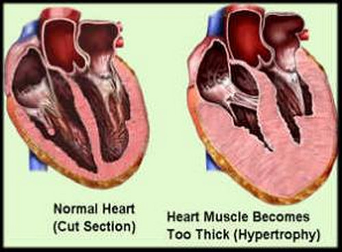 A comparison image of a healthy heart and a heart with hypertrophic cardiomyopathy.photo