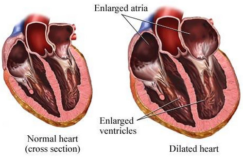 A normal heart and a heart with dilated cardiomyopathy. The ventricles are thin and enlarged (overly stretched.pictures