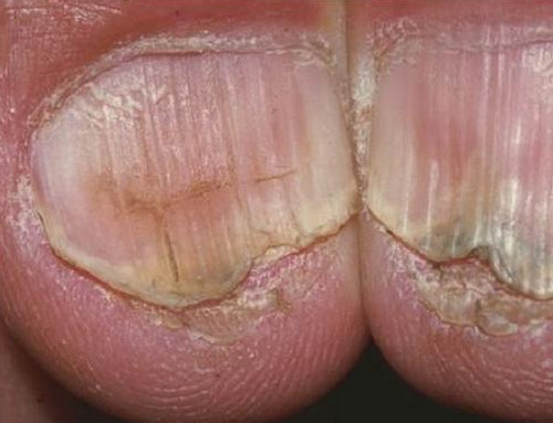 A severe form of koilonychia wherein the outer edges are crusted and the surrounding tissues are severely dry. There is also discoloration of the nails. image