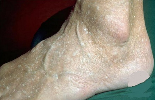 A stucco keratosis on the foot of an elderly patient.photo