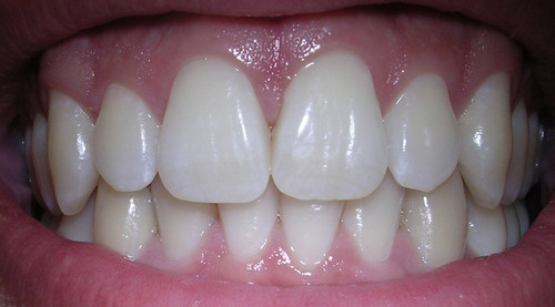 An image of a normal healthy gums.photo