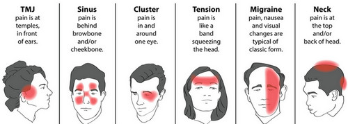 Images of different types of head pain and the pressure points.photo