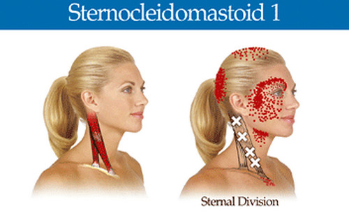 Sternocleidomastoid muscle, one of the muscles responsible for pain on top of the head.photo