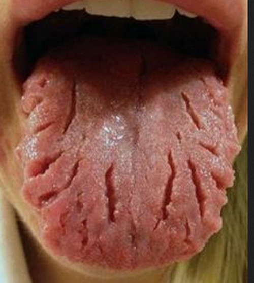 Visible ridges of the tongue along with pain and itching.image