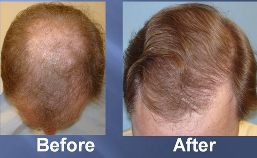 A before and after photo of hair transplant using the latest method FUT, which shows a better result than hair plugs photo