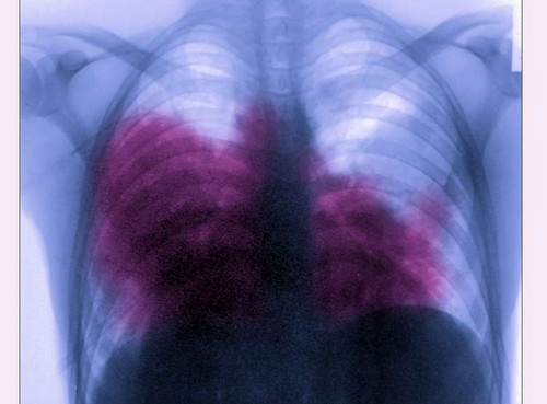 A close up view of the lungs of the patient with acute bilateral pneumonia caused by Legionnaire's disease pictures