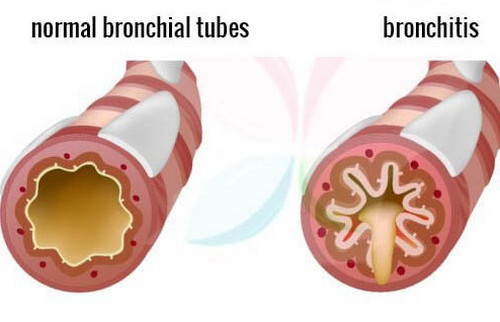 A comparison image between a normal healthy bronchial tubes and an inflamed bronchial tube pictures