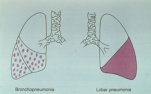 A comparison image between bronchopneumonia and lobar pneumonia pictures