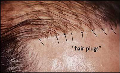 A patient with hair plugs pictures