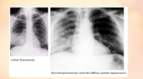 An x-ray film of patient with bronchopneumonia. In the film, you will notice a diffused patchy appearance image
