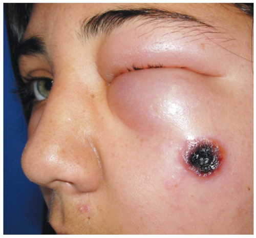 Anthrax Rash Pictures Atlas of Rashes Associated With Fever Cutaneous type of anthrax with eschar on the cheek of a person image photo