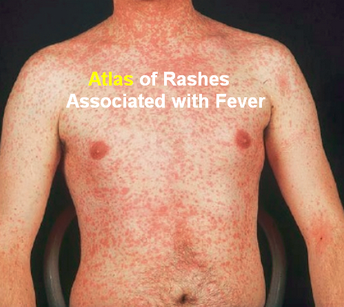 Atlas of Rashes Associated with Fever