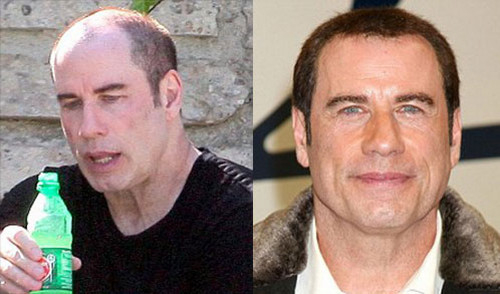 Before and after hair transplant methods of John Travolta image
