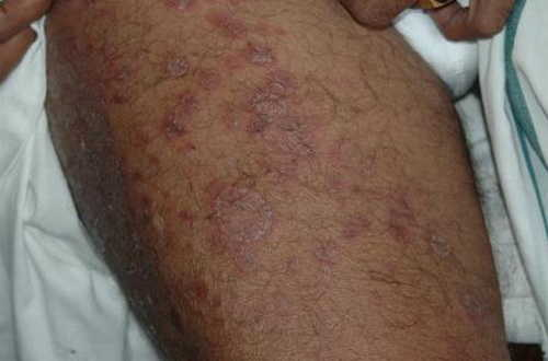 Chikungunya fever Rash Pictures Atlas of Rashes Associated With Fever Rash seen in a case of Chikungunya infection image photo