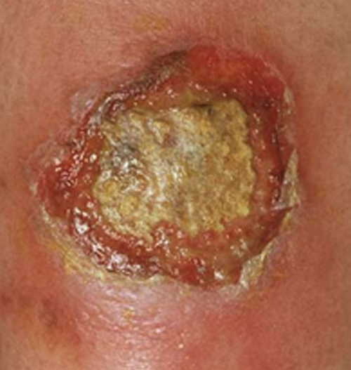 Ecthyma gangrenosum Rash Pictures Atlas of Rashes Associated With Fever Ecthyma gangrenosum image photo picture