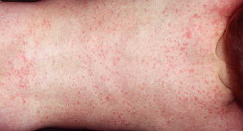 Exanthem subitum (roseola infantum, sixth disease) Rash Pictures Atlas of Rashes Associated With Fever West Nile fever rash presented as diffuse maculopapular rash image photo