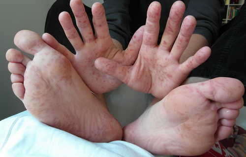 Hand-foot-and-mouth- disease Rash Pictures Atlas of Rashes Associated With Fever Hand foot and mouth disease in an adult image photo