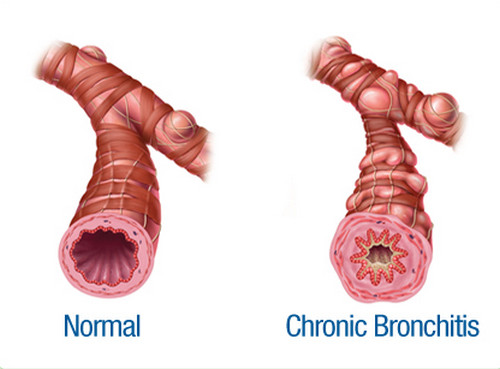 Images of normal airway and airway of patients with chronic bronchitis photos