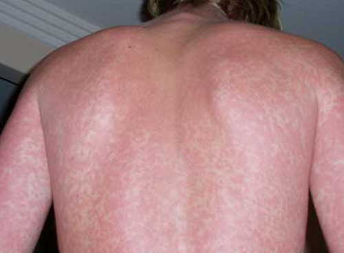 Infectious mononucleosis Rash Pictures Atlas of Rashes Associated With Fever Rash in case of a patient with infectious mononucleosis photo image