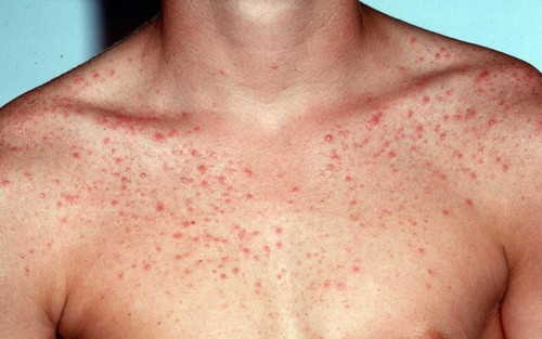 Pityrosporum folliculitis rash on a patient's chest and shoulder areas pictures