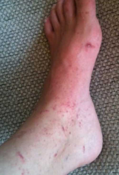 Plants causing rash pictures Atlas of Rashes Associated With Fever Contact dermatitis due to Poison Oak image photo