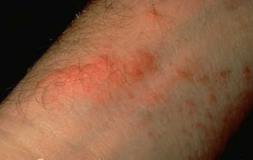 Plants causing rash pictures Atlas of Rashes Associated With Fever Contact dermatitis due to Poison ivy image photo