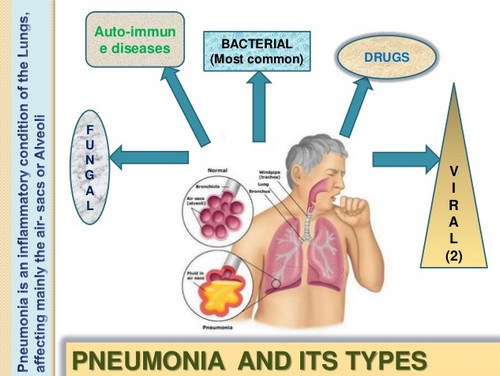 Pneumonia and the disease-causing factors photo