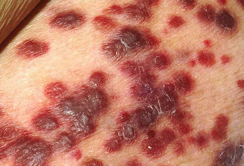 Primary HIV infection Rash Pictures Atlas of Rashes Associated With Fever Rash due to Kaposi's Sarcoma in an HIV infected patient image photo