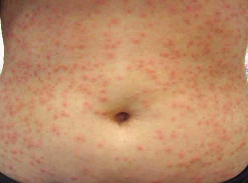 "Pseudomonas ""Hot-Tub"" Folliculitis Rash Pictures Atlas of Rashes Associated With Fever image photo"