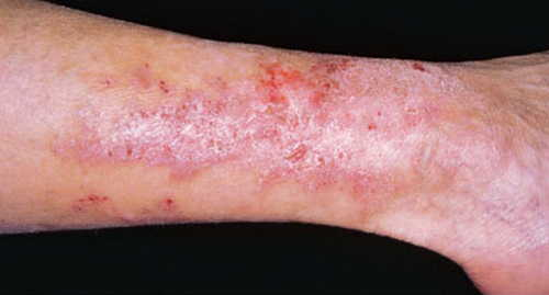 Rash in Celiac disease Rash Pictures Atlas of Rashes Associated With Fever Dermatitis herpetiformis photo image