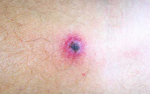 Rickettsial Pox Rash Pictures Atlas of Rashes Associated With Fever Rickettsial pox- The vesicles may resemble those in chicken pox image photo