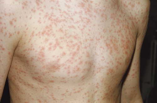 Rubella (German measles, third disease) Rash Pictures Atlas of Rashes Associated With Fever Rubella rash image photo
