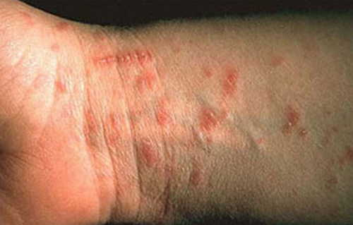 Scabies infestation Rash Pictures Atlas of Rashes Associated With Fever Scabies on wrist image photo