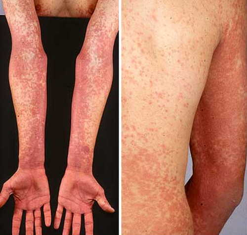 Scarlet fever (Second Disease- Scarlatina) Rash Pictures Atlas of Rashes Associated With Fever Scarlet fever rashes on upper limbs and back image photo