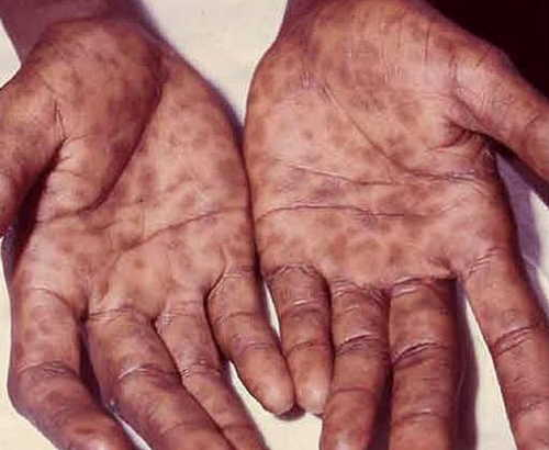 Secondary syphilis Rash Pictures Atlas of Rashes Associated With Fever Image shows rashes seen in secondary syphilis, in palms photo picture