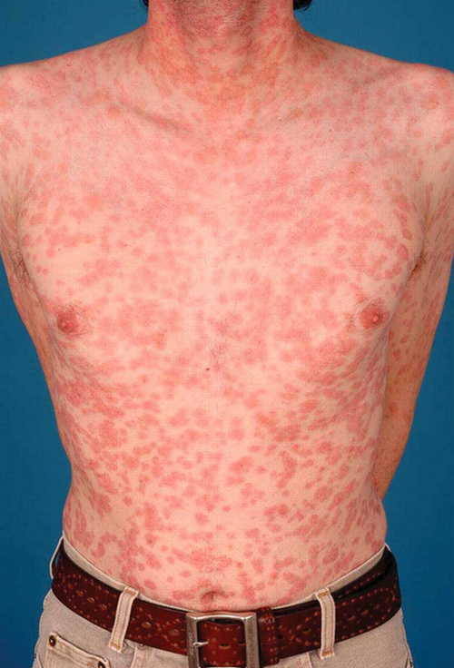 Secondary syphilis Rash Pictures Atlas of Rashes Associated With Fever Secondary syphilis- generalized rashes image photo
