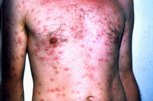 Secondary syphilis Rash Pictures Atlas of Rashes Associated With Fever Secondary syphilis with rash over trunk photo picture