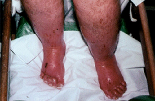 Severe brawny edema of the lower extremities with brown spots and ulcerations pictures