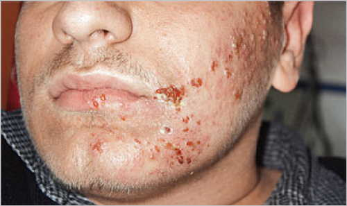 Shingles (Herpes Zoster infection, VZV) Rash Pictures Atlas of Rashes Associated With Fever Shingles along facial nerve distribution image photo