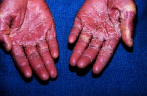 Staphylococcal Toxic Shock Syndrome Rash Pictures Atlas of Rashes Associated With Fever Desquamation (skin peeling off) of palm can be seen in a case of Staphylococcal toxic shock syndrome photo image